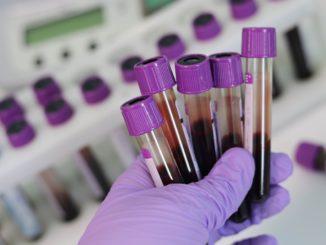 Учёные создали устройство для выявления аллергии на антибиотики